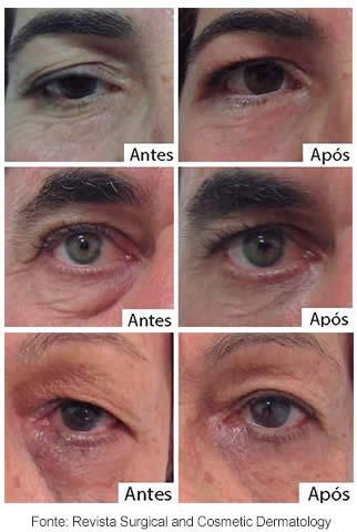 Dermolifting - Rejuvenescimento no olhar! - Clinica Alexandra Bononi